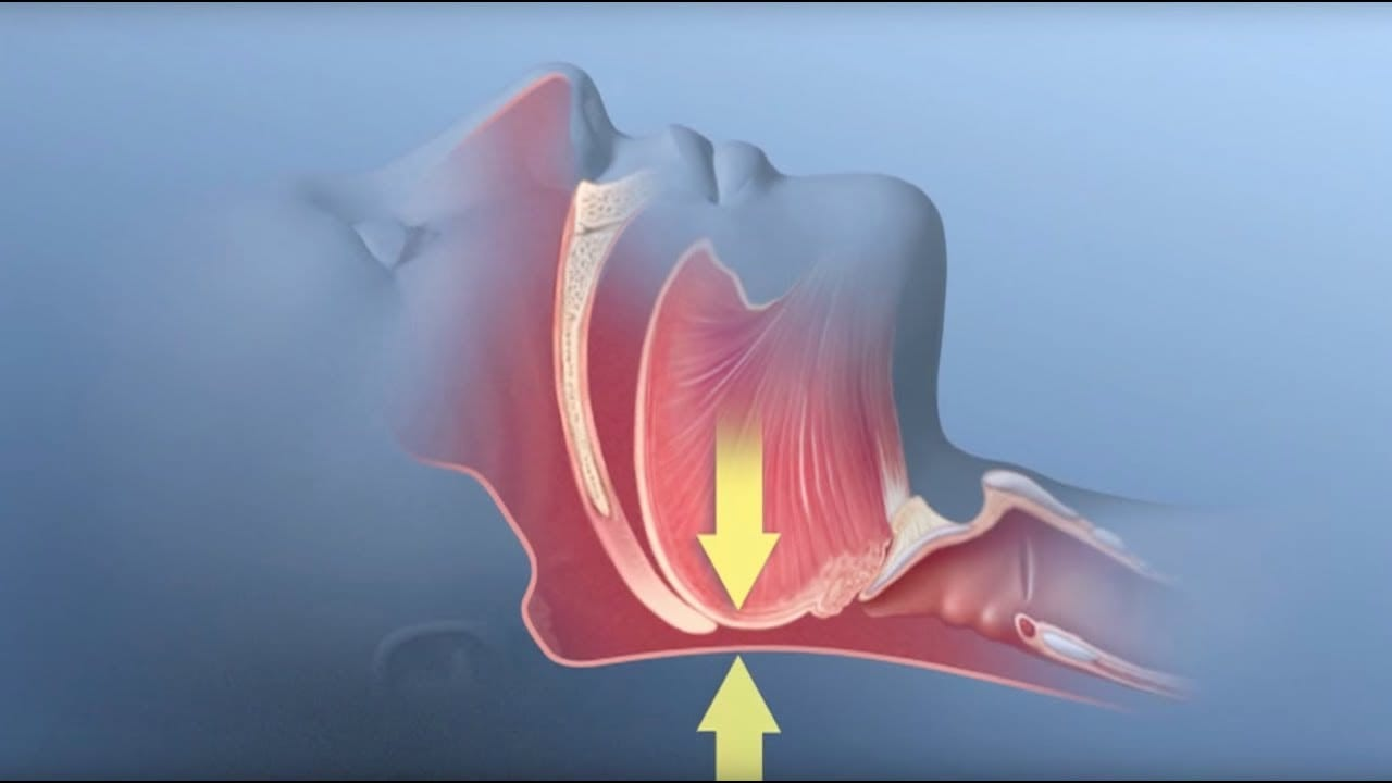 Obstructive Sleep Apnea Explanation by www.dailesleep.org